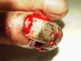 Fingernagel Entfernen Nach Quetschung